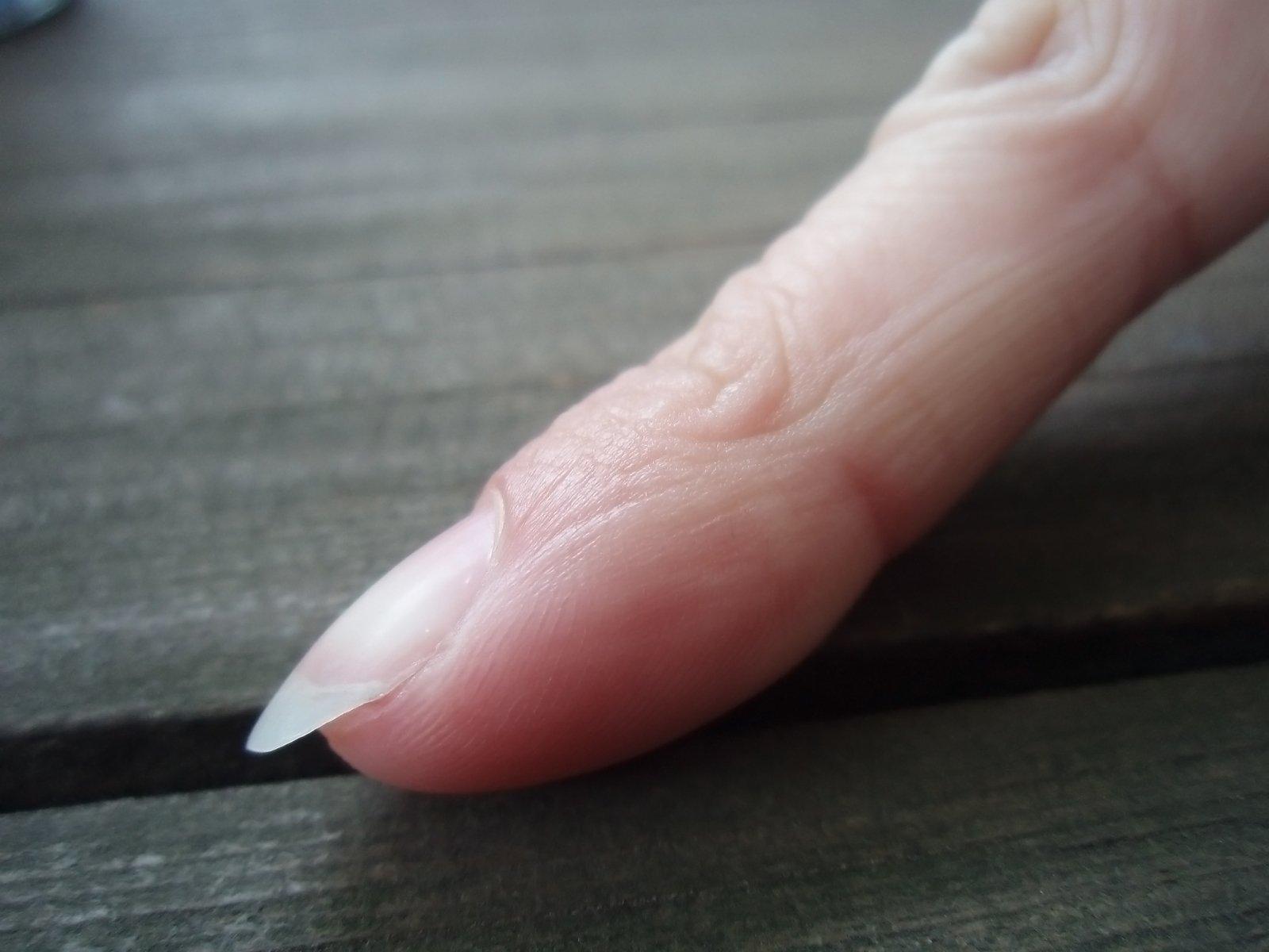 Как достать занозу из пальца, даже если она глубоко, и её не 88