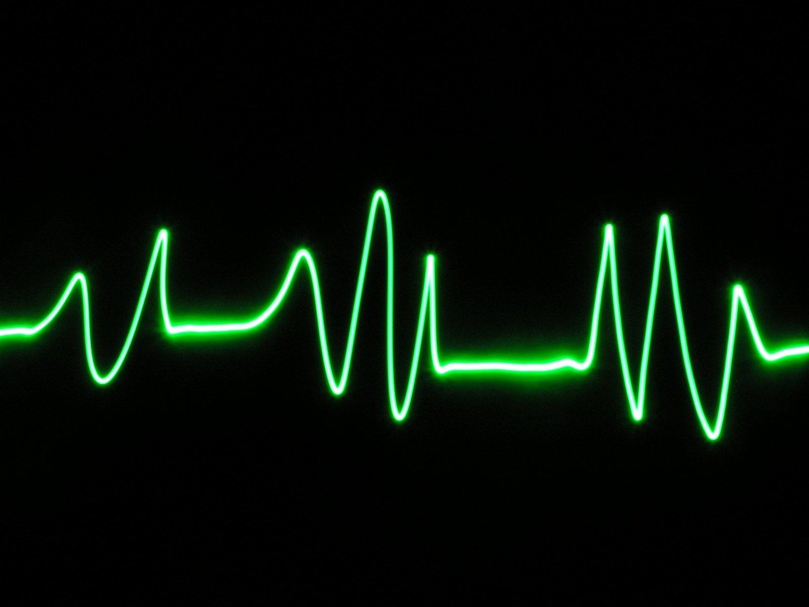 картинки сильное сердцебиение серии предусмотрены