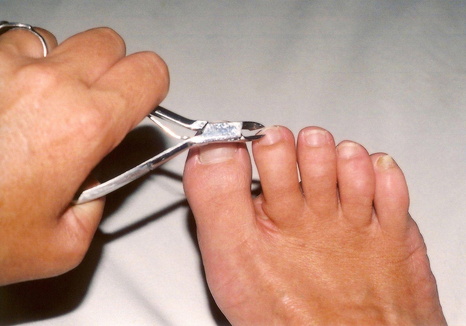 Фото правильно подстриженного ногтя большого пальца ноги