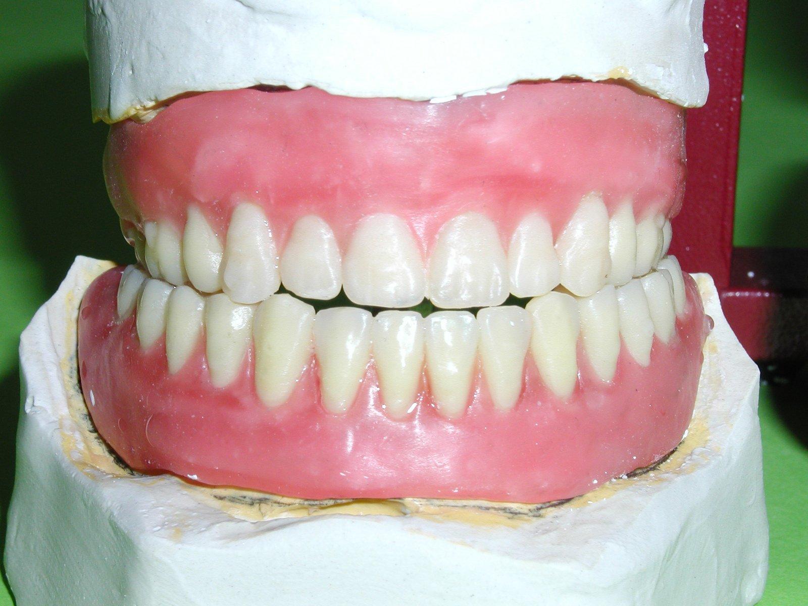 Free false teeth Stock Photo - FreeImages.com