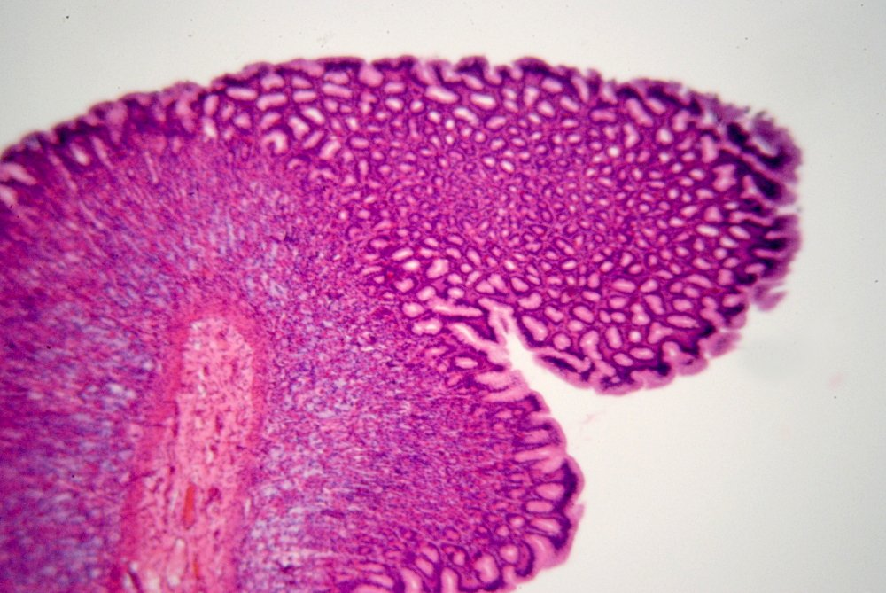 Free Estómago - Vista microscópica 1\'s humano Stock Photo ...