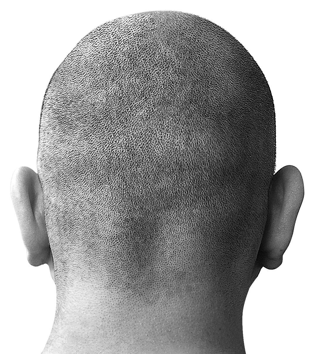 bald head 1