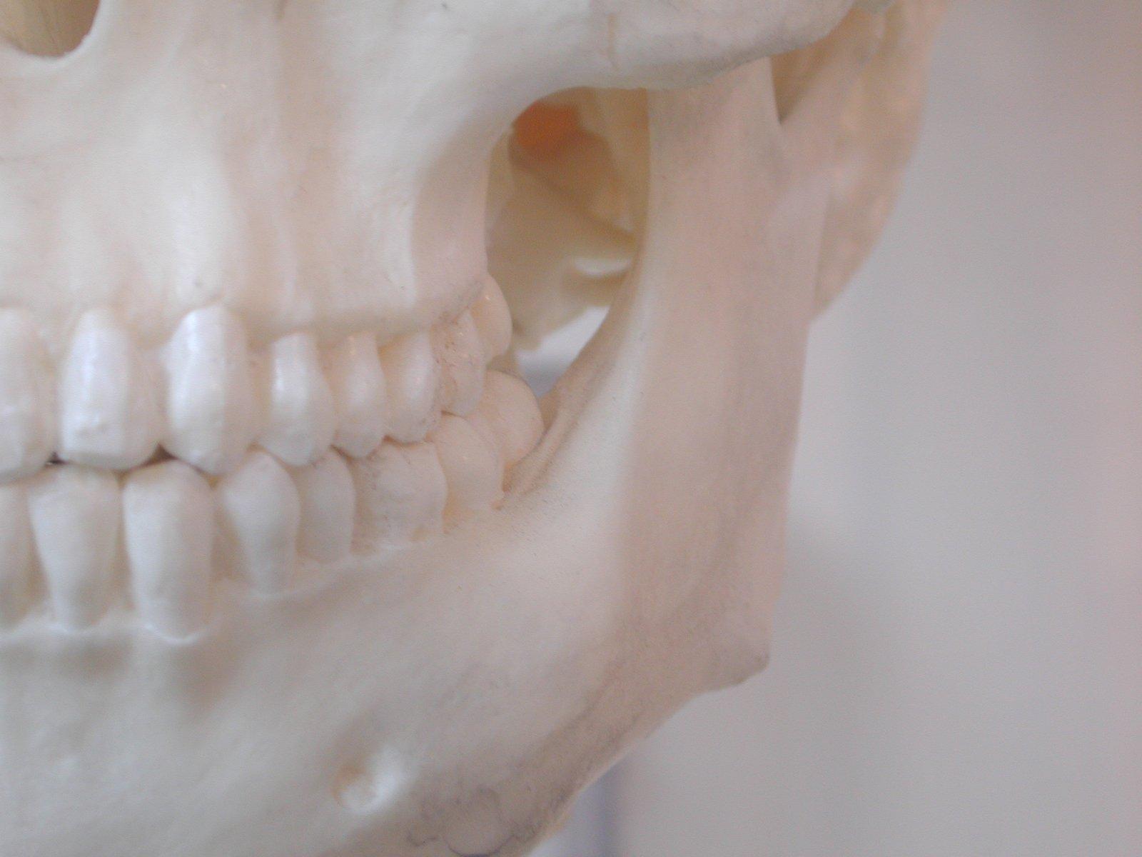 Mr. Bones 2