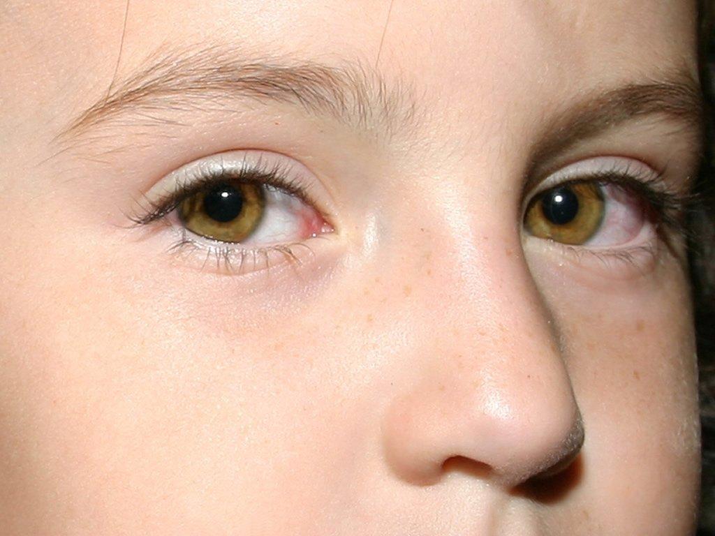 фиолетовые глаза у людей реальные фото одна