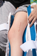 scar on girls leg