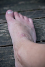 foot wound