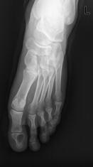 Human foot  x-ray film