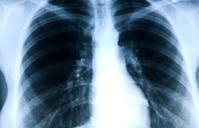 x-ray thorax
