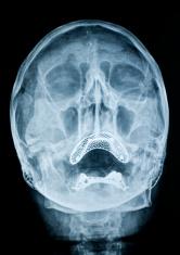 X-ray image of head