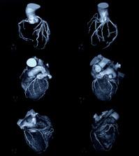 heart X-ray image