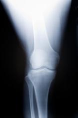knee x-ray image