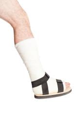 Broken Leg in Cast, Isolated on White