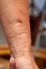 scarred wrist