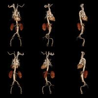 computerized tomography angiogram