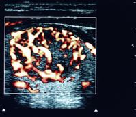 thyroid nodule ultrasound