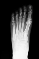 X-Ray of Broken Foot