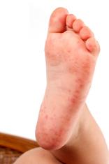 Folliculitis On Child's Foot