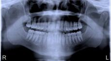 Panoramic Dental Xray - Blue
