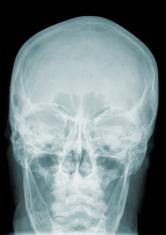 X-Ray Image: Head