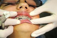 Last day of braces