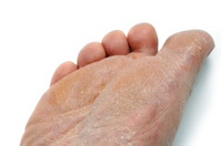 athletes foot, dried rough skin