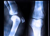 X-Ray image if the human knee