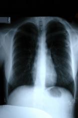 X-ray of Torso