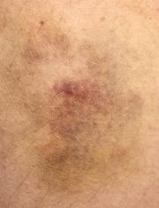 Nasty looking bruise, real