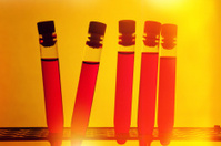 Test tubes rack