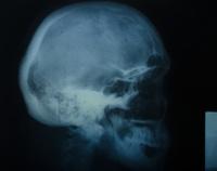 Head X-ray with Screws IV