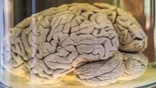 Human brain in a jar (real specimen)