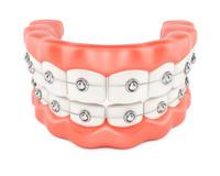 Jaws with dental braces
