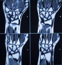 MRI scan test results wrist hand injury
