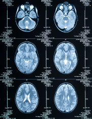 MRI Brain Scan showing multiple images of head and skull