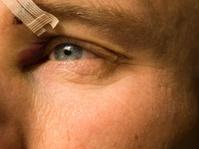 black eye series