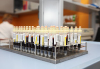Blood samples in test tubes...in blood bank