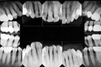 Digital Xray of Teeth