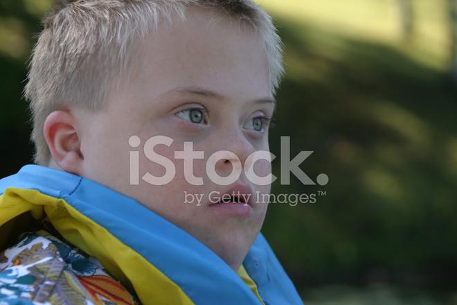 из дауна мальчики фото синдромом