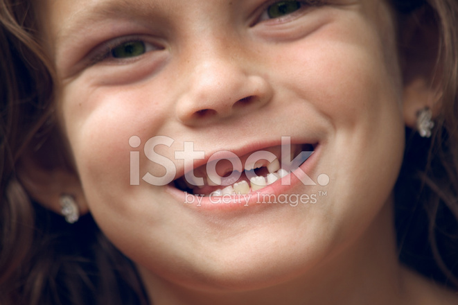 Missing Two Front Teeth Stock Photos Freeimages Com