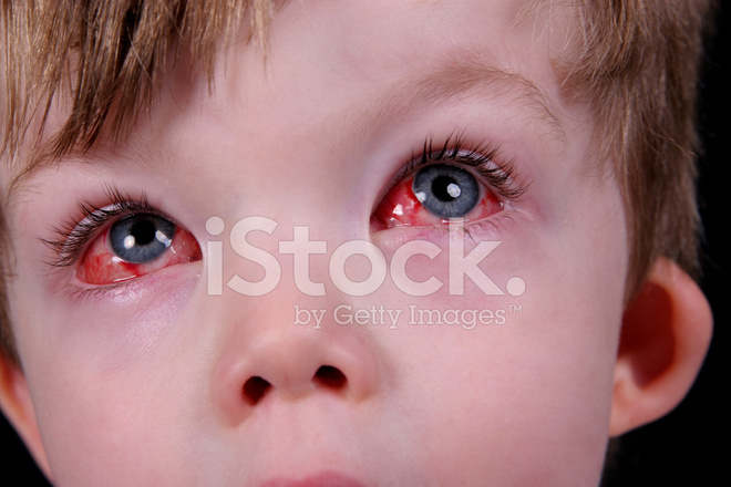 eye surgery recovery stock photos freeimages com