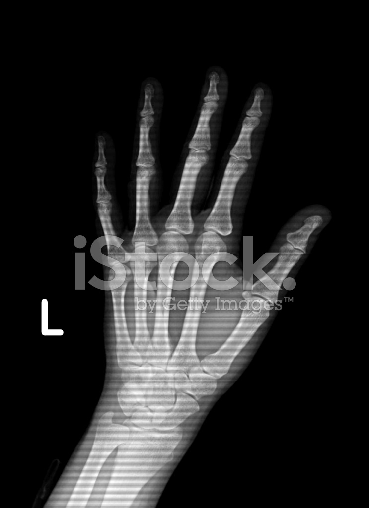 Xray Image of Left Hand and Wrist Stock Photos - FreeImages.com