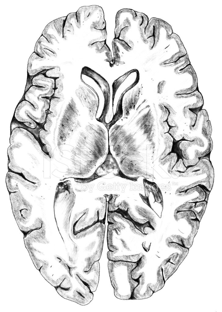 Gehirn Hirnrinde Querschnitt Stock Vector - FreeImages.com