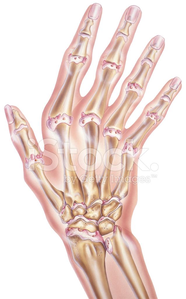 Hand UND Finger Arthrose Der Gelenke Stock Vector - FreeImages.com