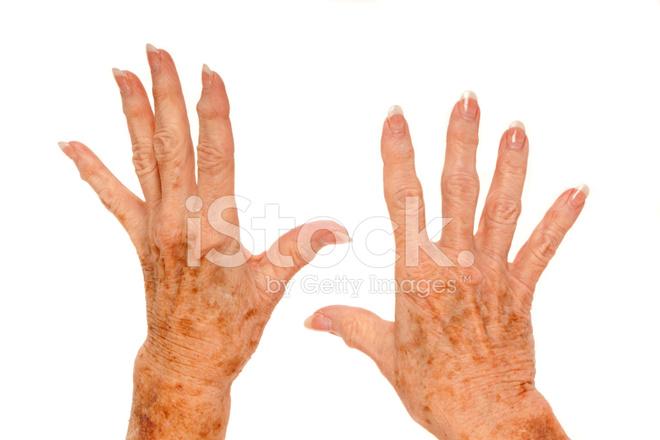 Медицина от артритов как снять термостат в е30