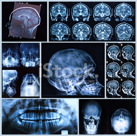 Anatomie Kopf UND Hals Stockfotos - FreeImages.com