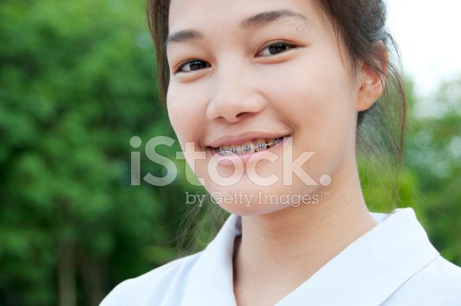 Japanese girls braces, sexy greek wife