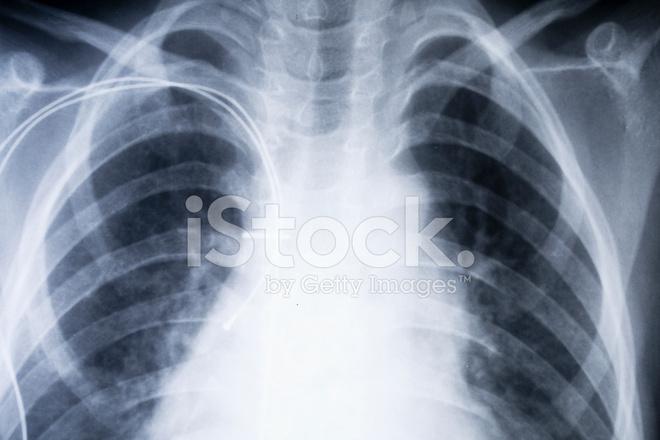 X Ray Brust Stockfotos - FreeImages.com
