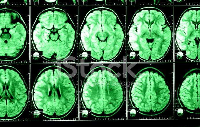 Röntgenbild Des Gehirns Computertomographie Stockfotos - FreeImages.com