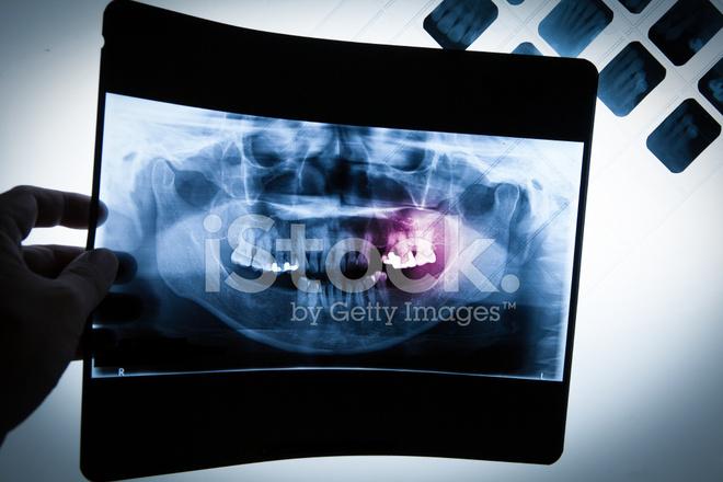 Película DE Radiografía Dental Panorámica Para Dentista Fotografías ...