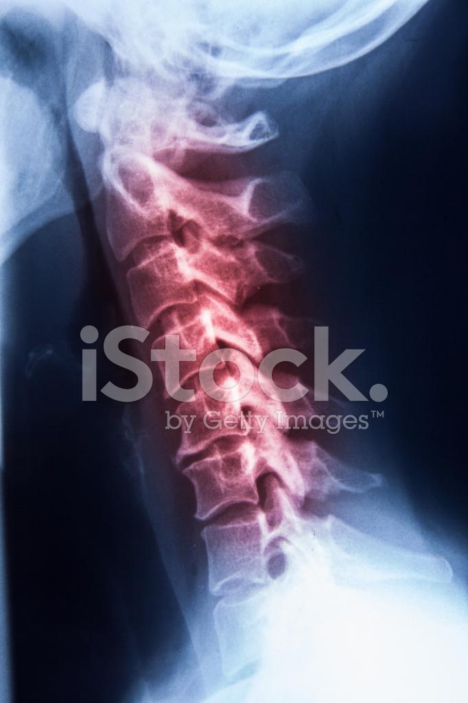 X Ray Mrt Der Wirbelsäule Hals UND Kopf Stress Stockfotos ...